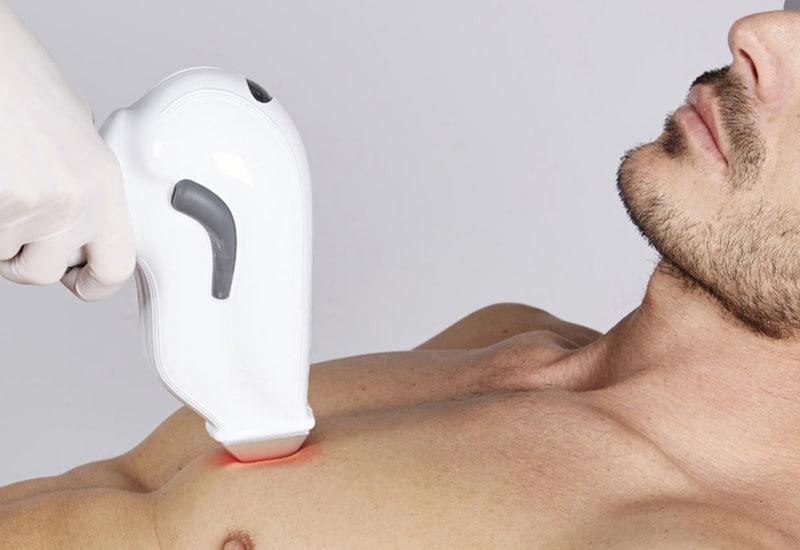 Diodenlaser-Haarentfernung-Behandlung2