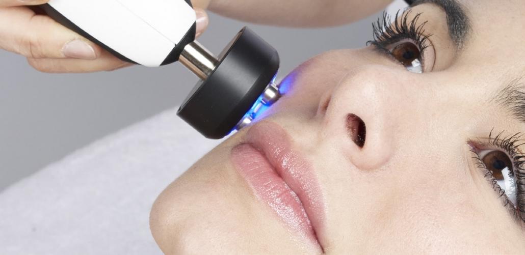Tetrapolare Radiofrequenz Behandlung Gesicht