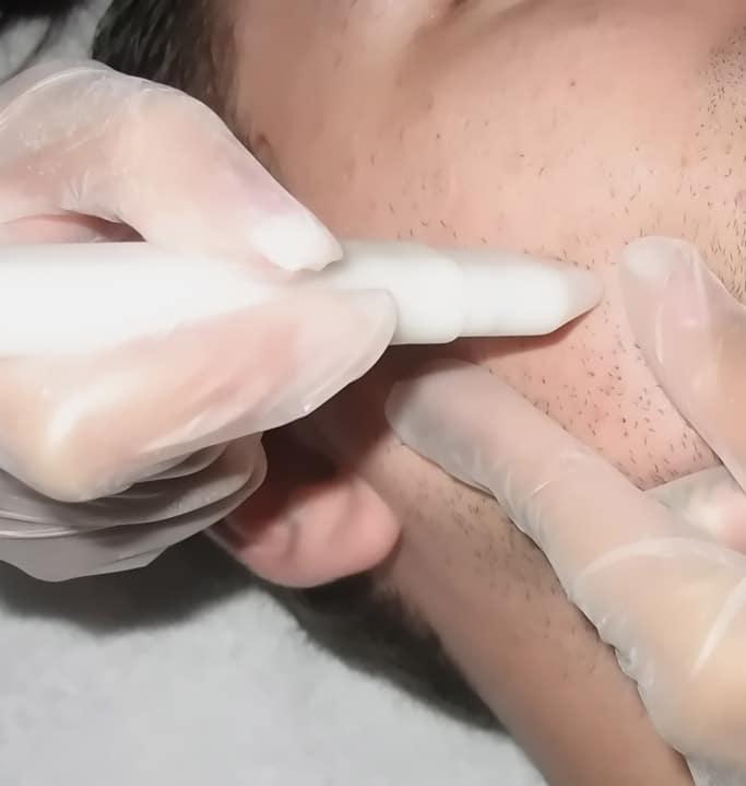 Mikrodermabrasions-Behandlung Derm-o-mat