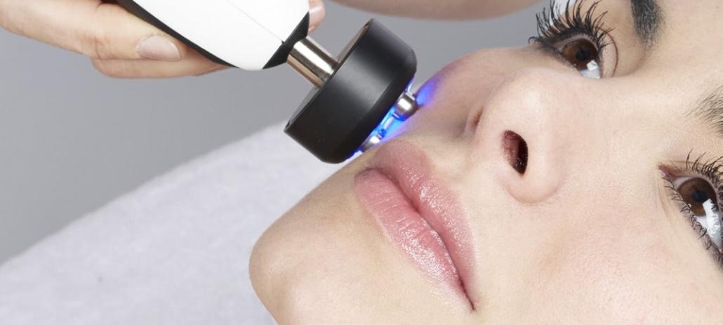 Anwendung tetrapolare Radiofrequenz Gesicht