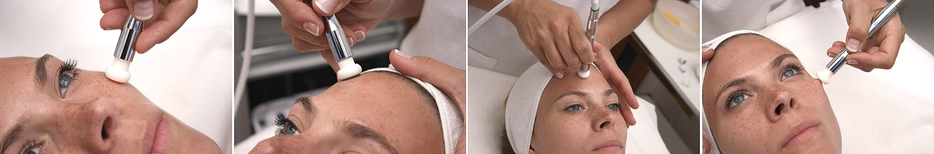 Professionelles Peeling mit der Diamant-Dermabrasion