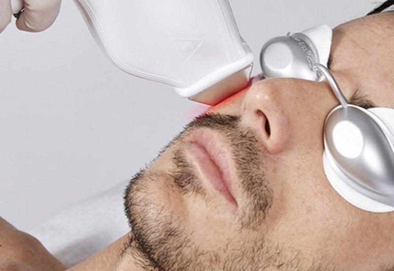 Effiziente Haarentfernung mit dem Elite SHR Diodenlaser